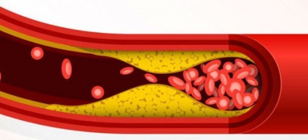 how to reduce cholesterol naturally home remedies