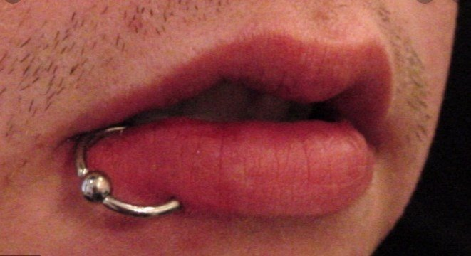 Home Treatment of Lip Piercing Infection