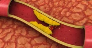 What is the role of cholesterol in the body